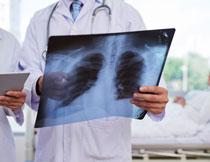手拿着胸片的医生摄影高清图片